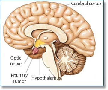 pituitary gland tumor image