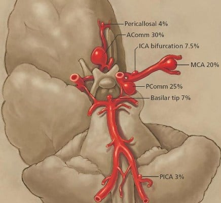 Aneurysm of The Posterior Inferior Cerebellar Artery – Occurrence and Prognosis