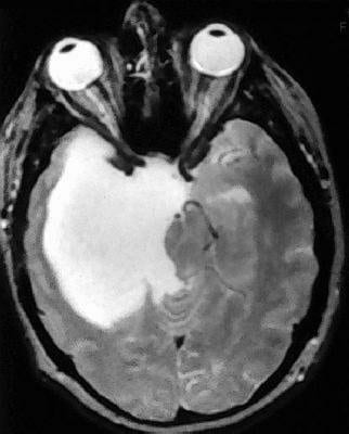 An Overview of Astrocytoma